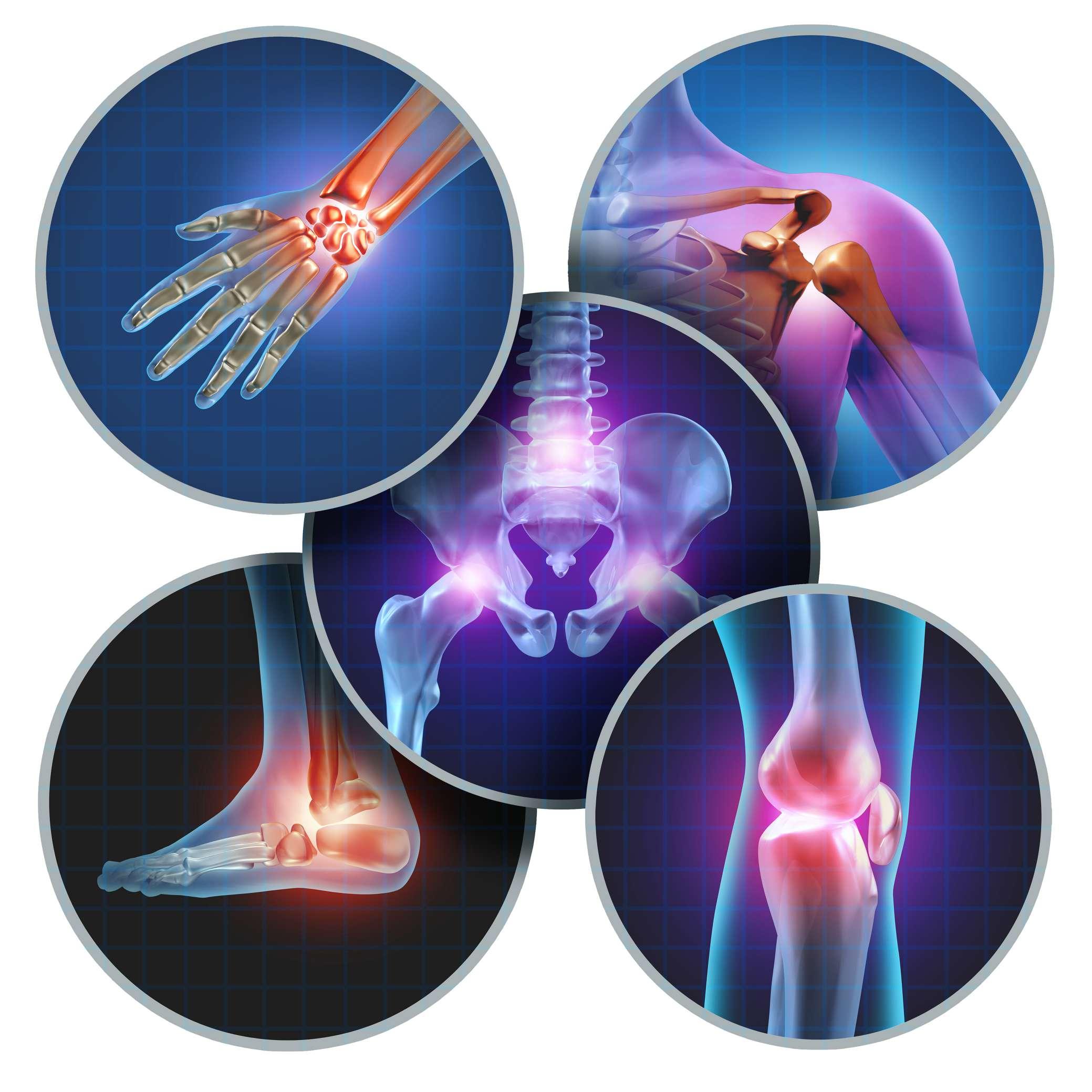 Osteoarthritis Rheumatoid